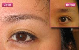 eye_new